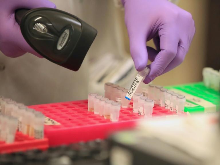 Berichte: Bund und Länder setzen auf massive Ausweitung von Corona-Tests (© 2020 AFP)