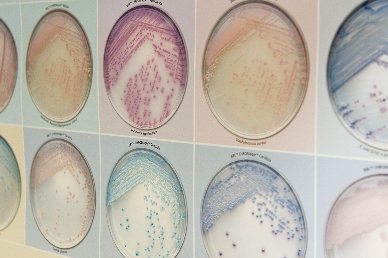 19 Neuinfektionen meldet der Märkische Kreis am Montag (07. September). (Foto: Labor Wahl)